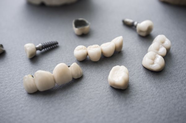 Why Are Dental Crowns So Popular?