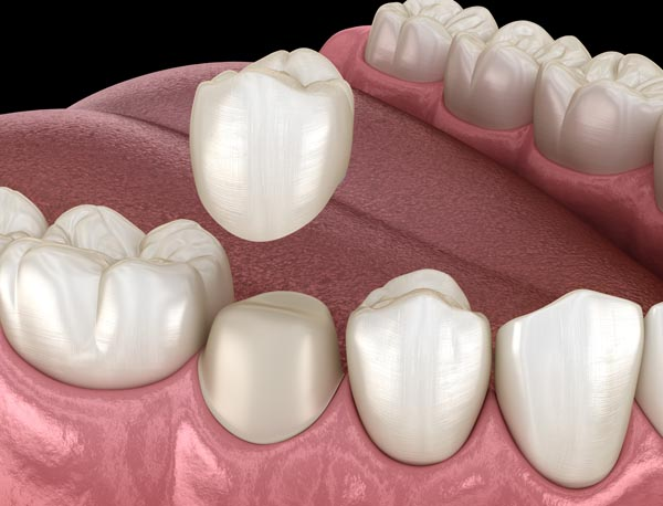 What Are Dental Crowns Used For?
