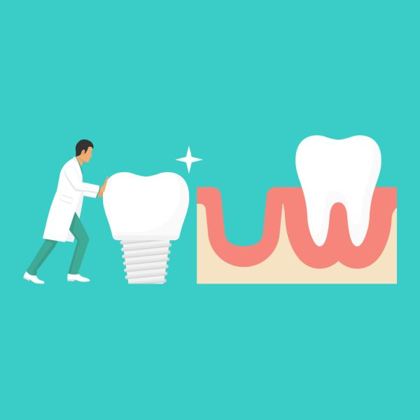 An Example Of A Dental Implant Treatment Plan