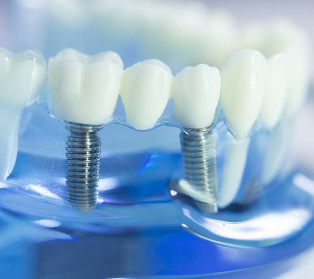 Mt Kisco Dental Implants