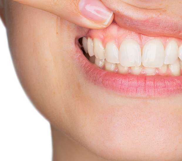 Mt Kisco Gum Disease